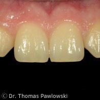 Implantatkronen Ausgangslage