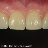 Implantatkronen Lösung