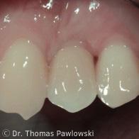 Implantateinzelkrone Lösung