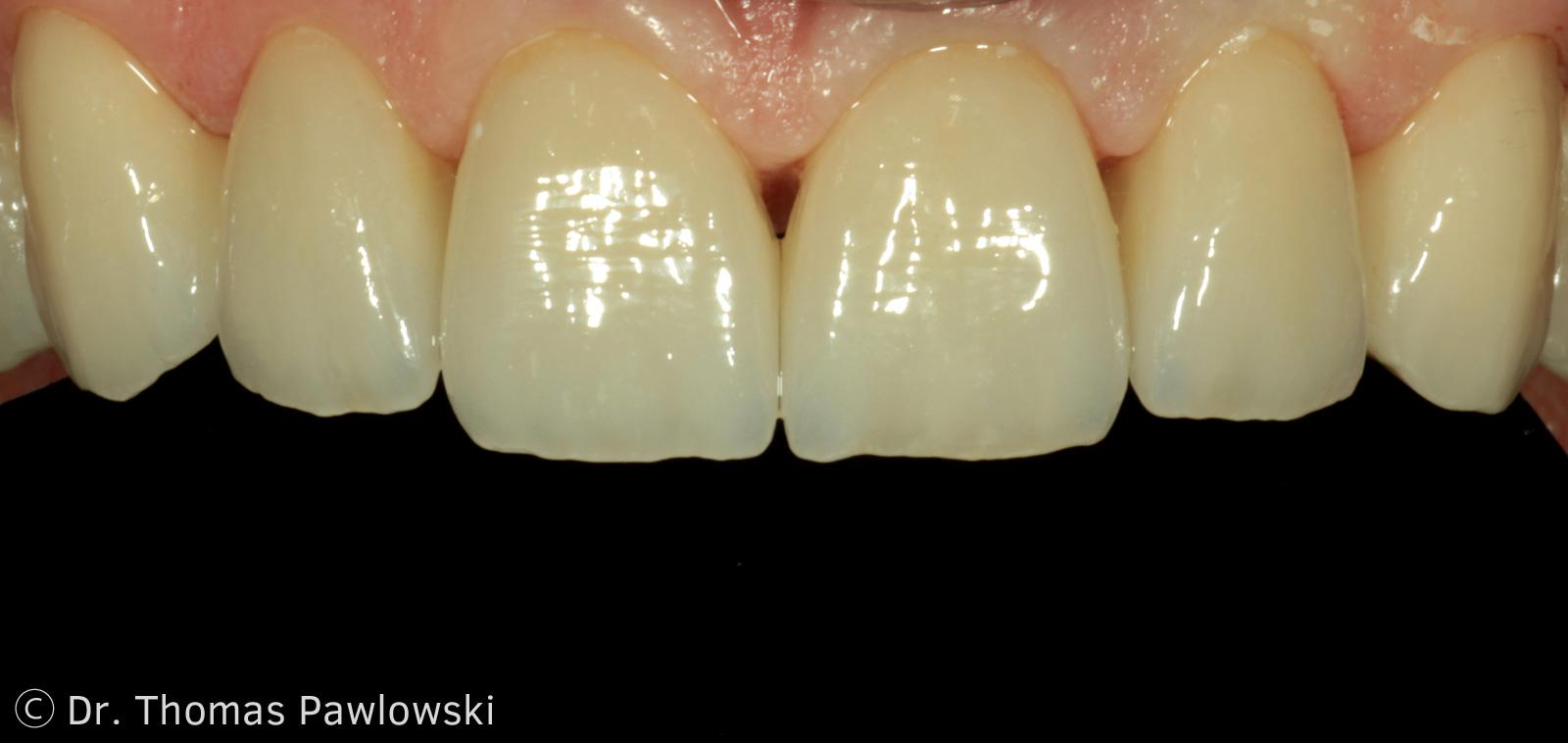 Zähne machen einen Unterschied