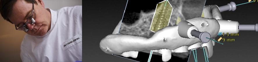Dr. Pawlowski - Schablonengefuehrte Implantation